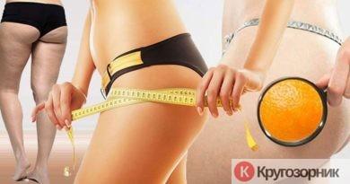 kak borotsya s cellyulitom 390x205 - Как бороться с целлюлитом